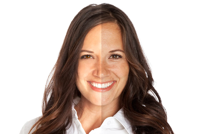Visage d'une femme divisé en 2 parties afin de représenter les effets d'un traitement IPL sans douleur